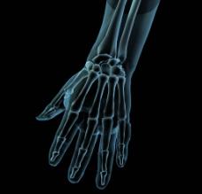 手掌骨图片